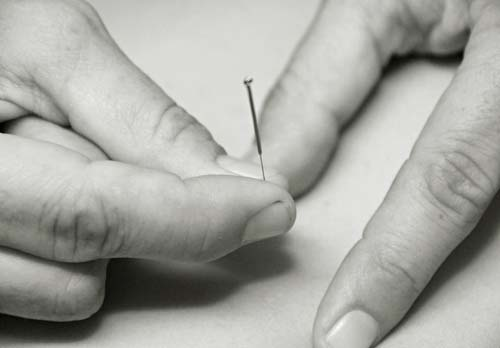 mendocino acupuncture